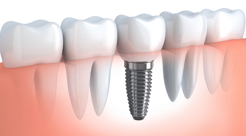 BASIC DENTAL IMPLANT COURSE