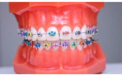 Life of An Orthodontic Dental Nurse – Perfect Smiles
